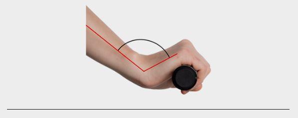 Excessive wrist curvature image