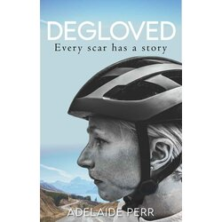 Full Cycle/Tune Up Degloved : Every Scar has a Story by Adelaide Perr
