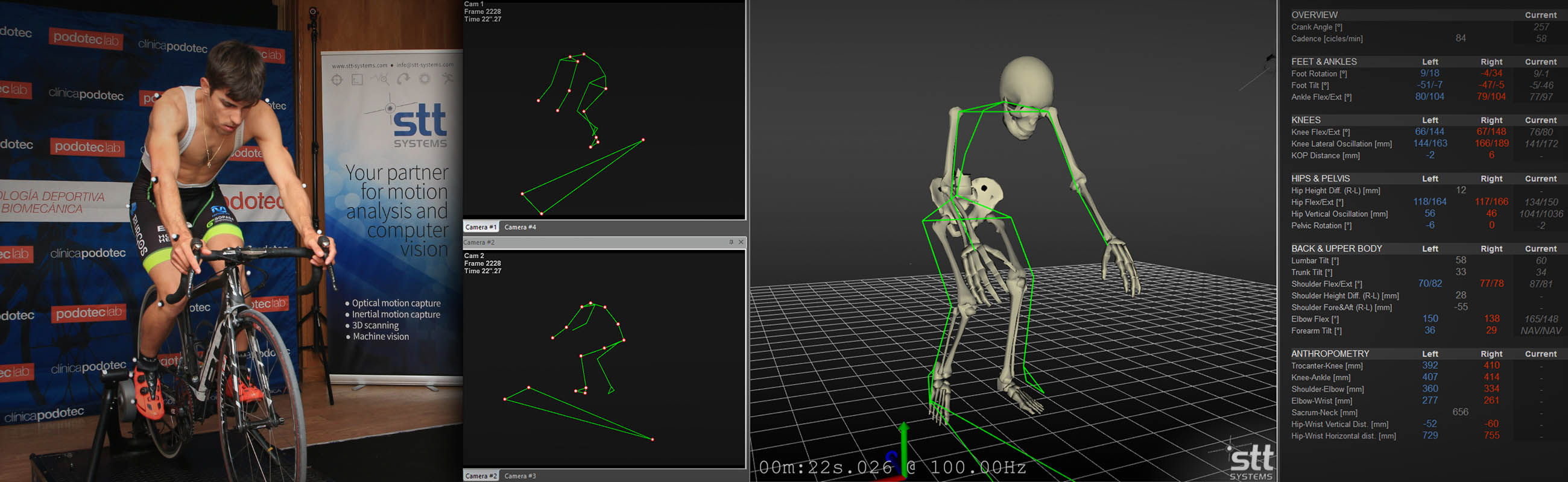 STT 3D Motion Capture System